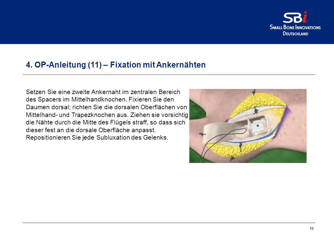 4. OP-Anleitung (10) – Fixation mit Ankernähten