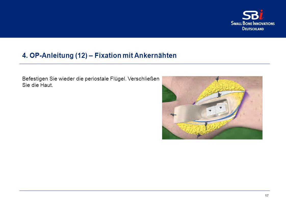 4. OP-Anleitung (11) – Fixation mit Ankernähten