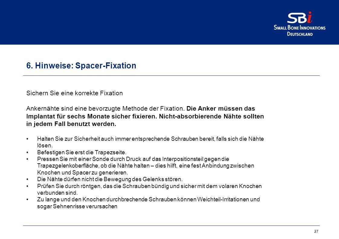Hinweise: Spacer-Positionierung