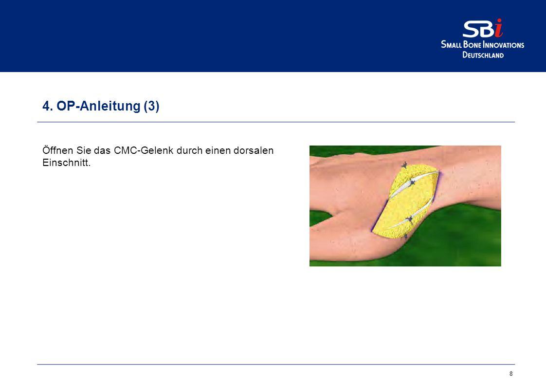 4. OP-Anleitung (2)