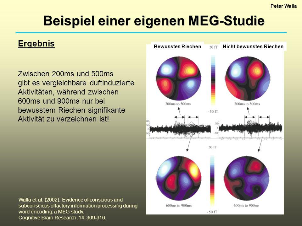 Beispiel einer eigenen MEG-Studie