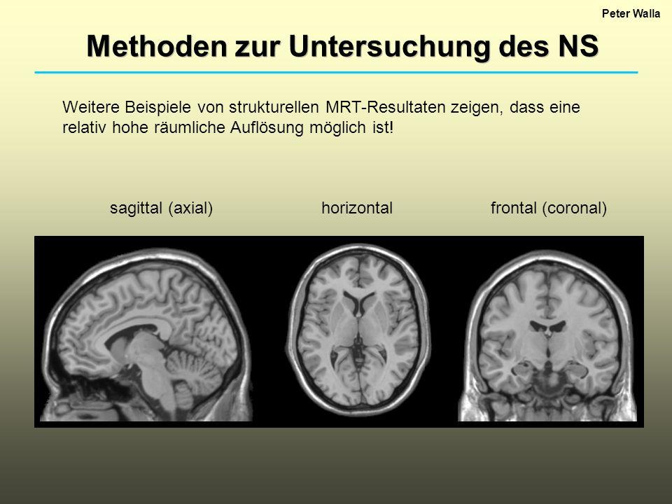 Methoden zur Untersuchung des NS
