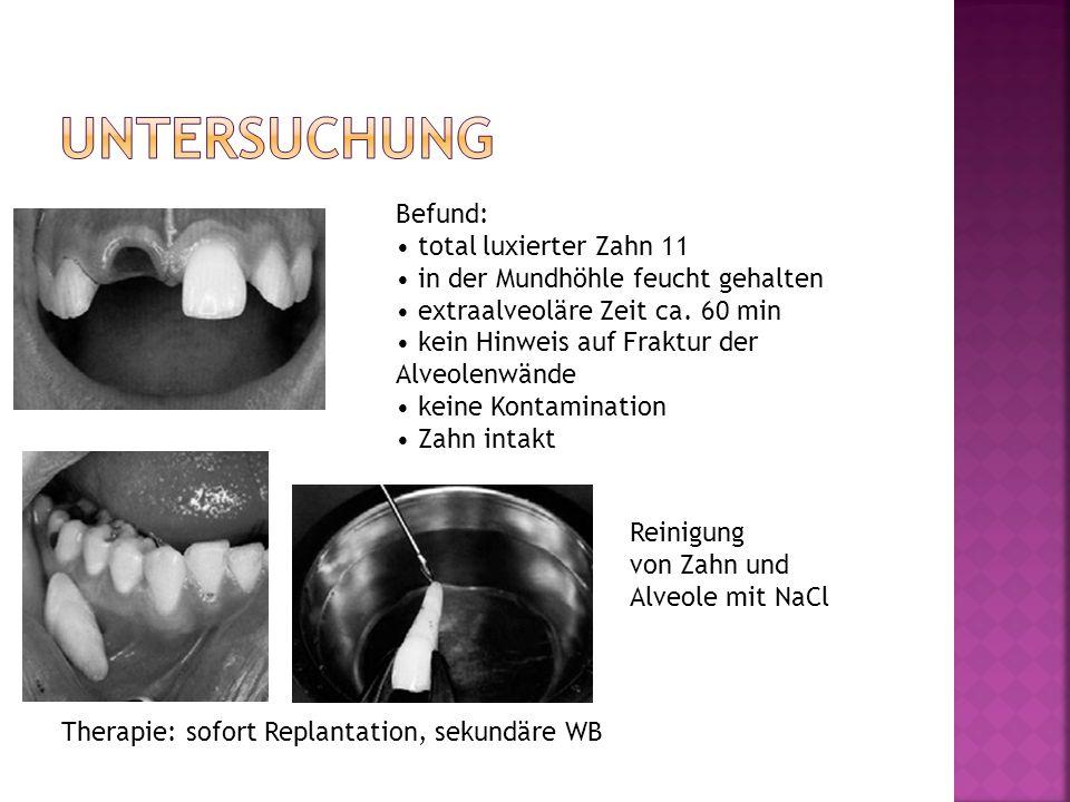 Untersuchung Befund: • total luxierter Zahn 11