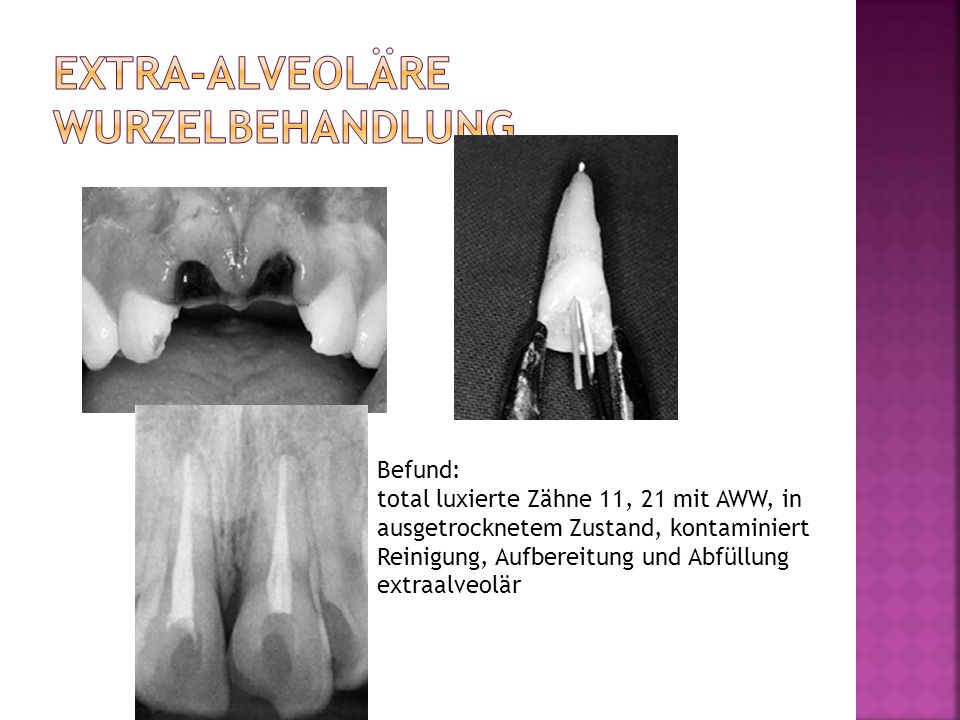 Extra-alveoläre Wurzelbehandlung