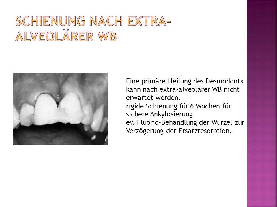 Schienung nach extra-alveolärer WB