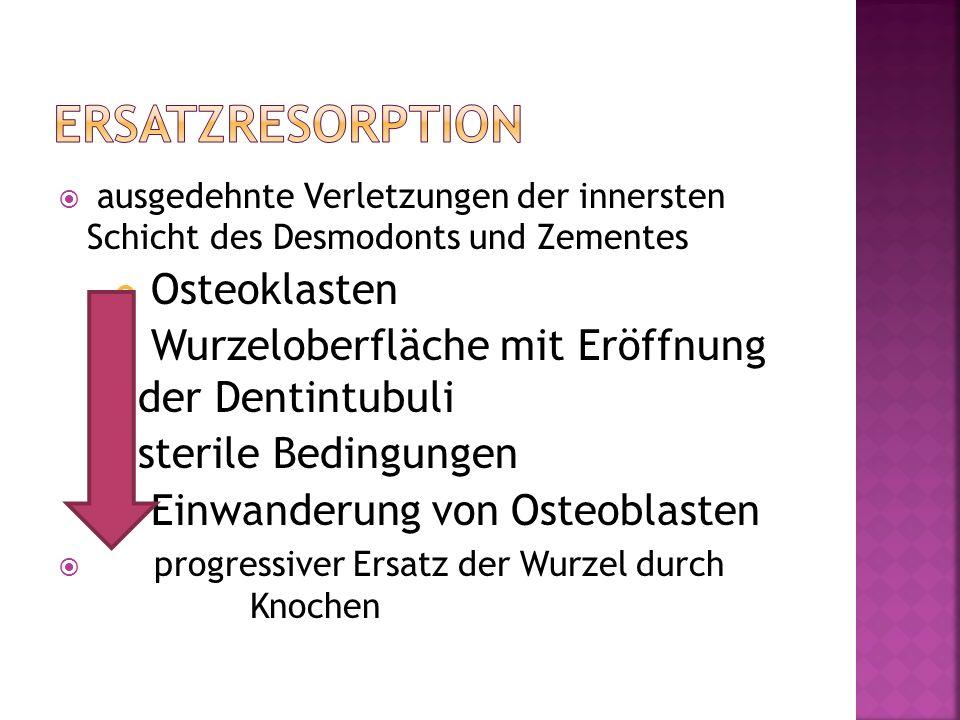 Ersatzresorption Osteoklasten