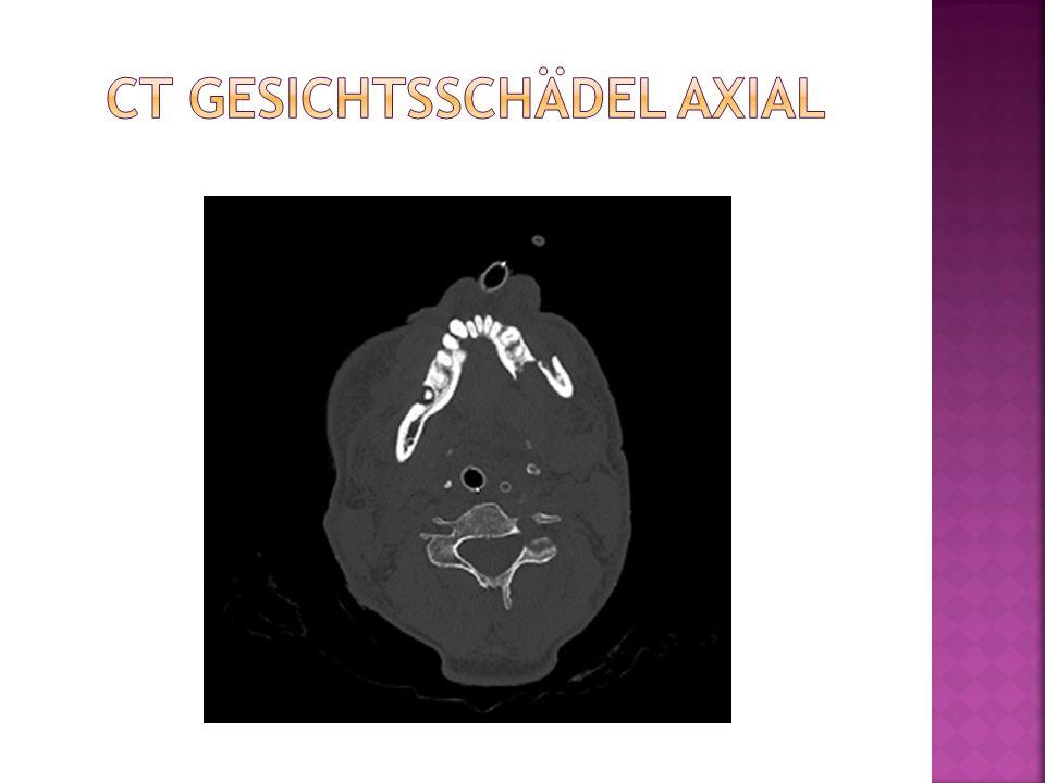 CT Gesichtsschädel axial