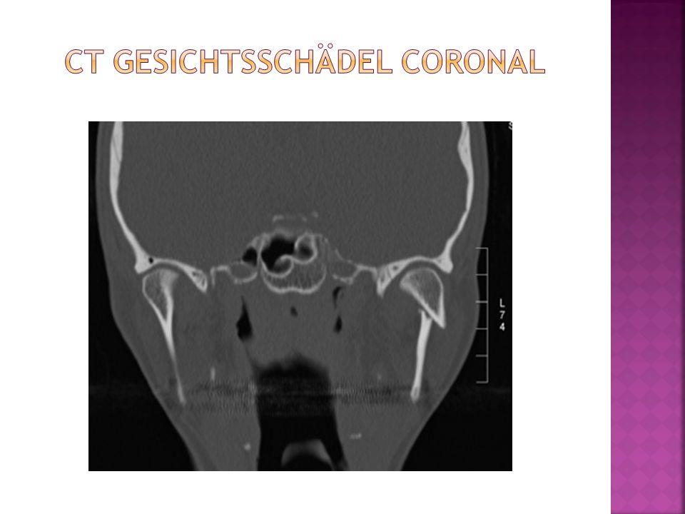 CT Gesichtsschädel coronal