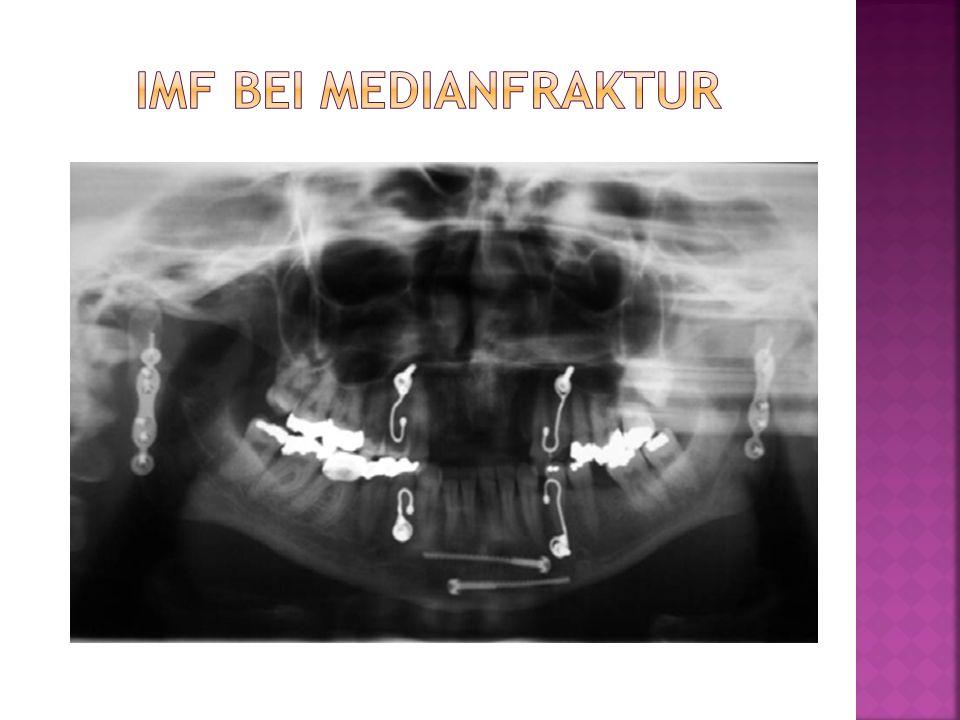 IMF bei Medianfraktur