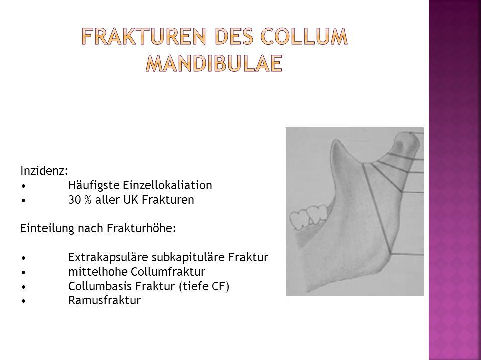 Frakturen des collum mandibulae