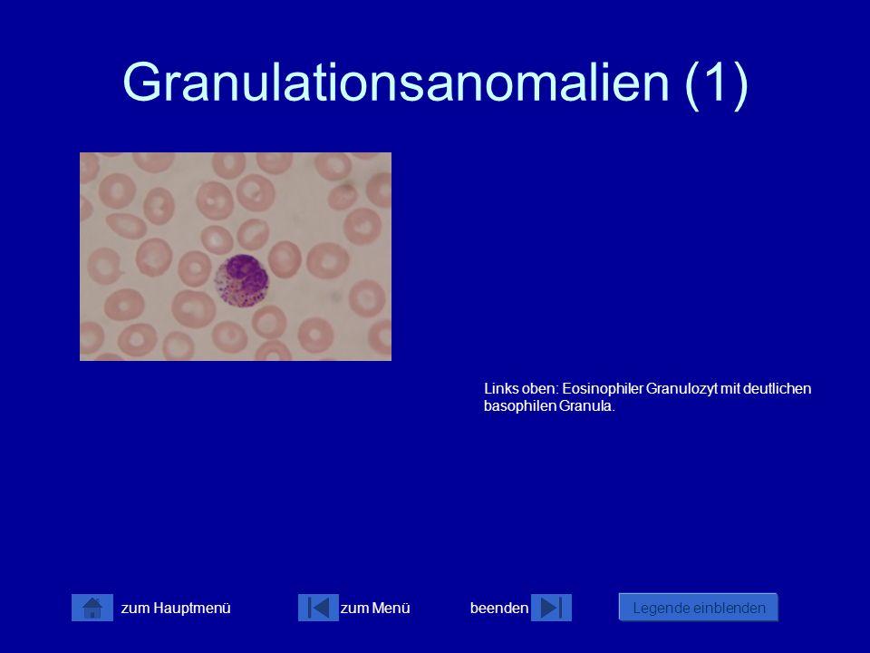 Granulationsanomalien (1)