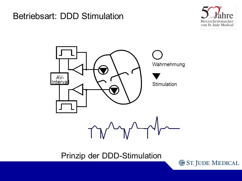 Betriebsart: DDD Stimulation