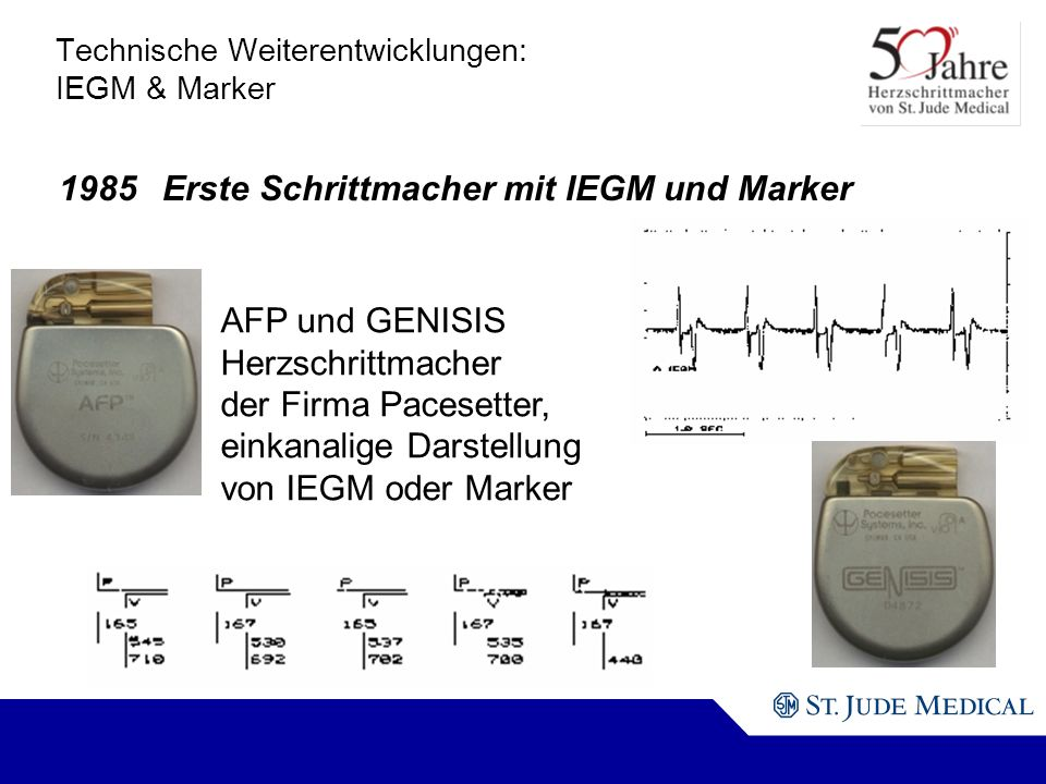 Technische Weiterentwicklungen: IEGM & Marker