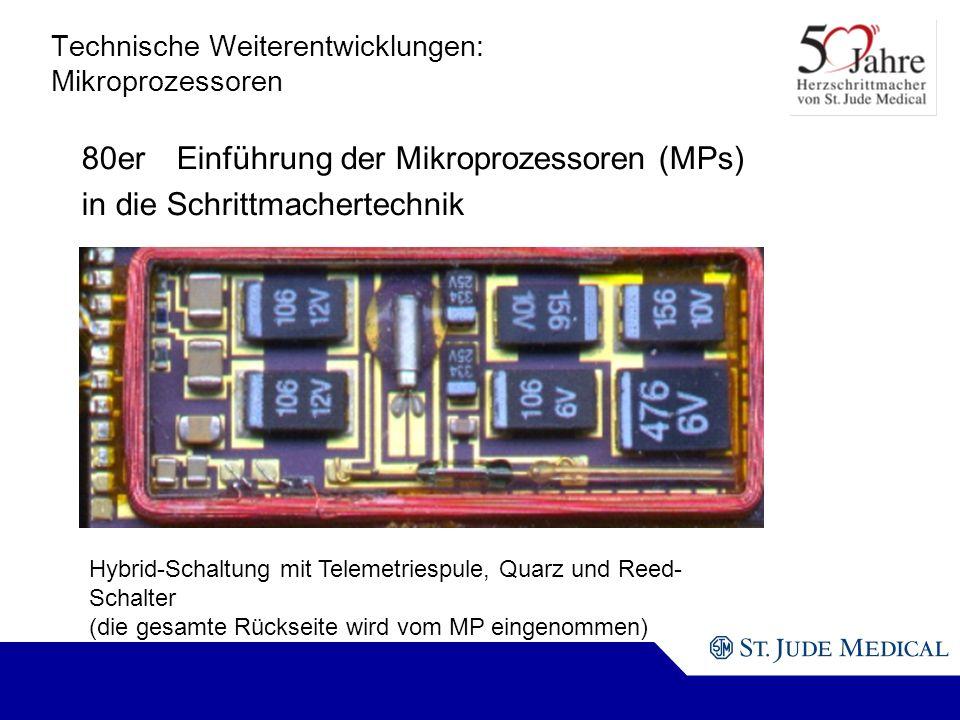 Technische Weiterentwicklungen: Mikroprozessoren