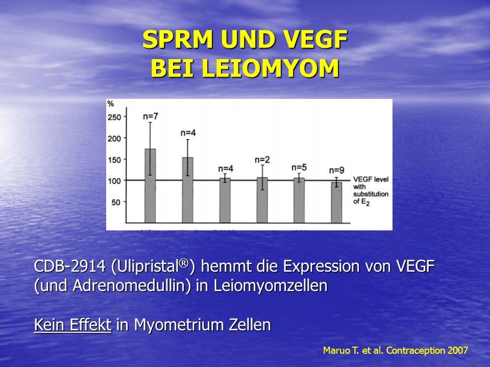 SPRM UND VEGF BEI LEIOMYOM