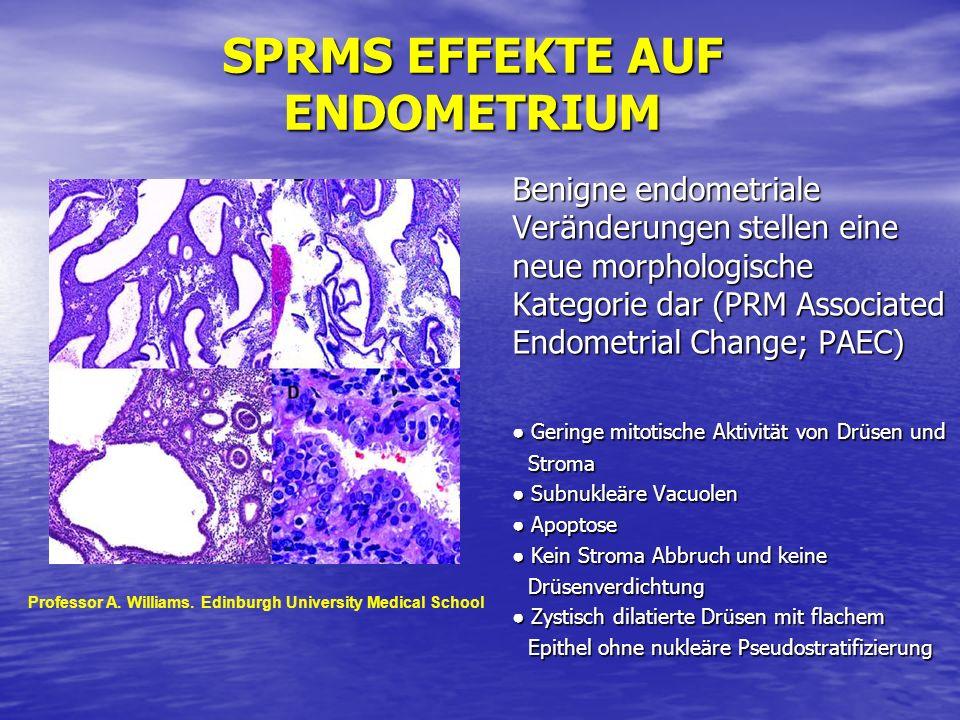 SPRMS EFFEKTE AUF ENDOMETRIUM