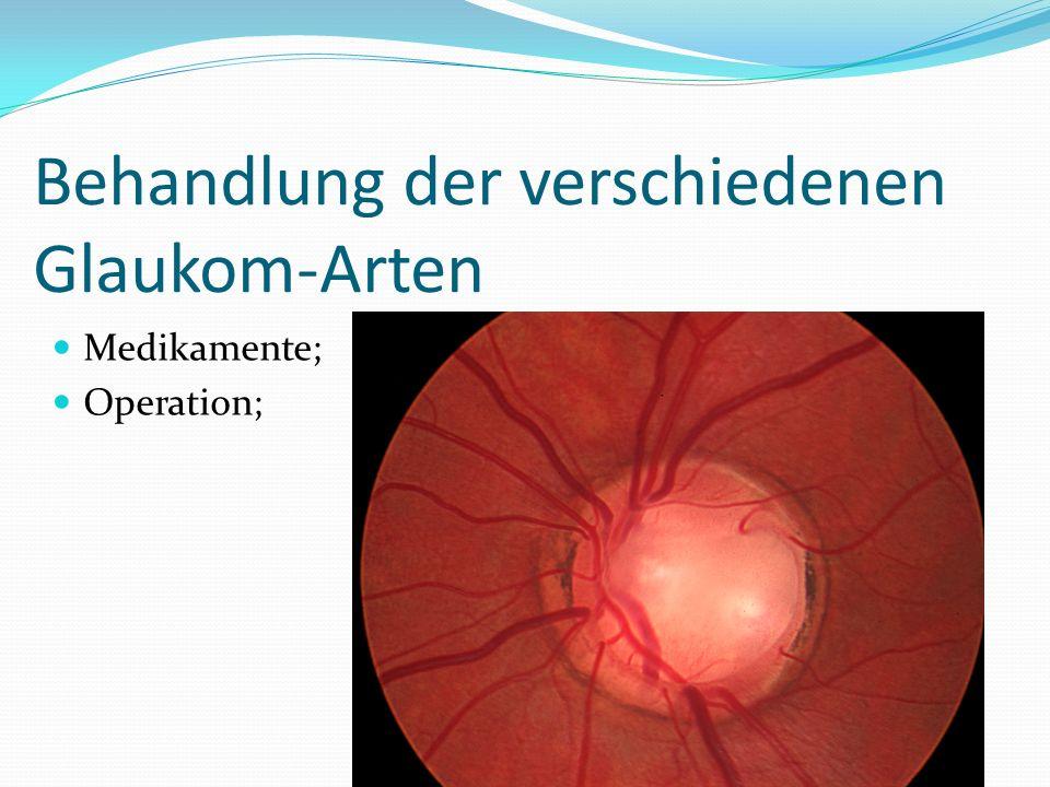 Behandlung der verschiedenen Glaukom-Arten