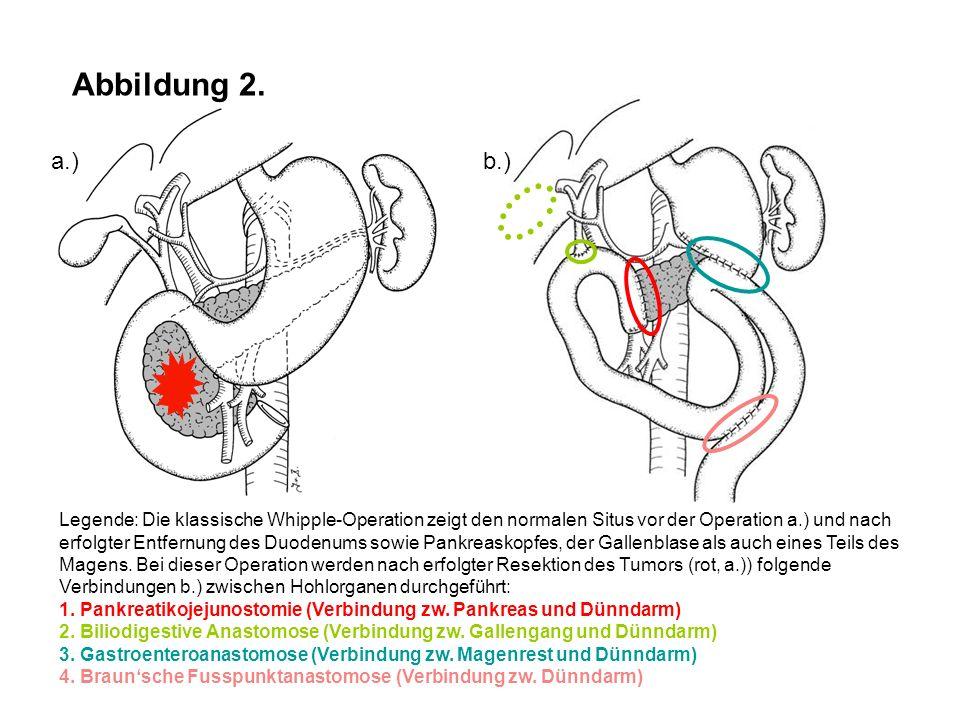 Abbildung 2. a.) b.)