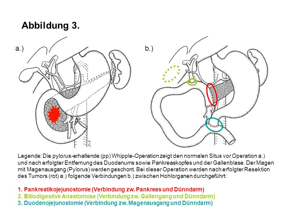 Abbildung 3. a.) b.)
