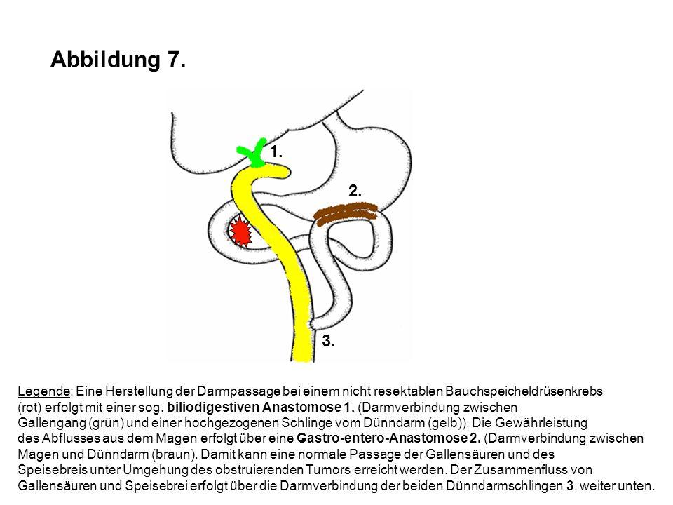 Abbildung 7. 1. 2. 3. Legende: Eine Herstellung der Darmpassage bei einem nicht resektablen Bauchspeicheldrüsenkrebs.
