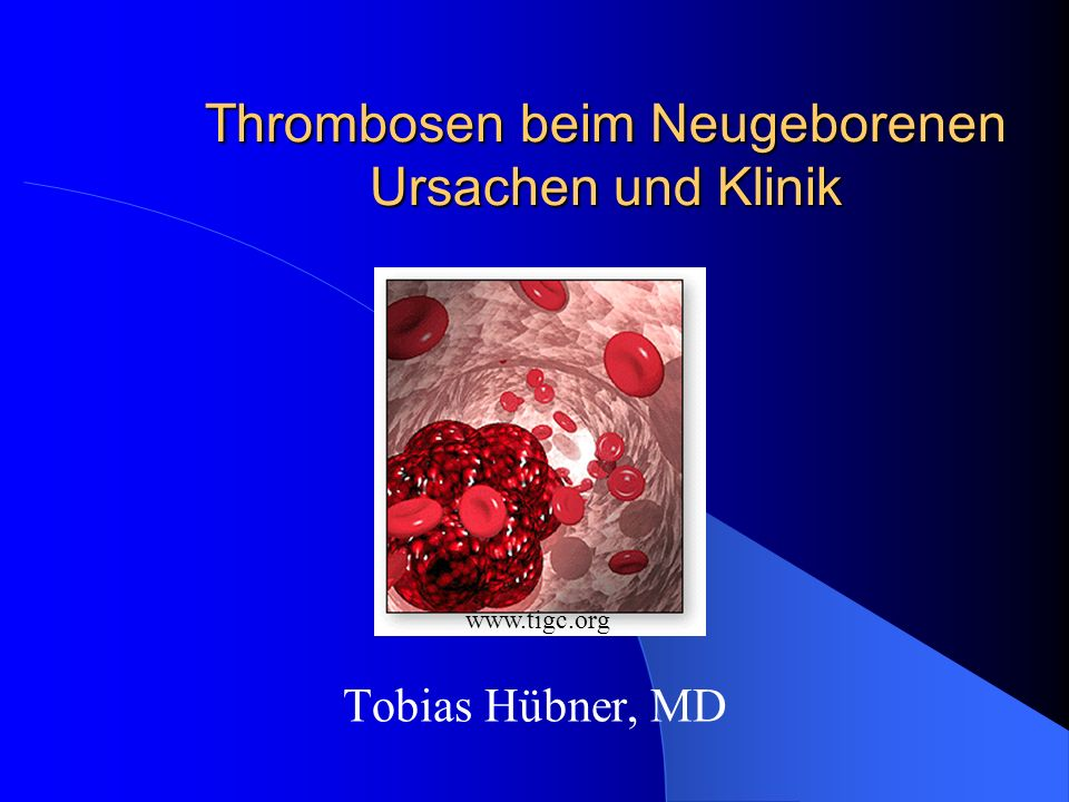 Thrombosen beim Neugeborenen Ursachen und Klinik
