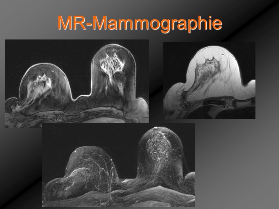 MR-Mammographie Wolf Gertraud, Narbe nach –mammae re. lateral