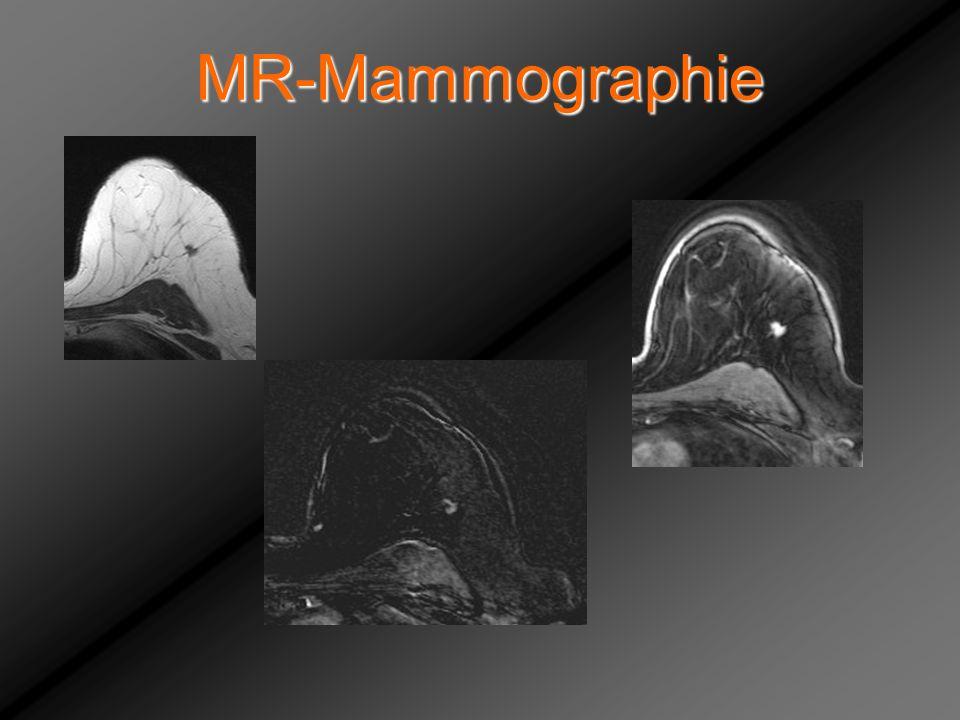 MR-Mammographie Totz Maria, Rezidiv nach IDC