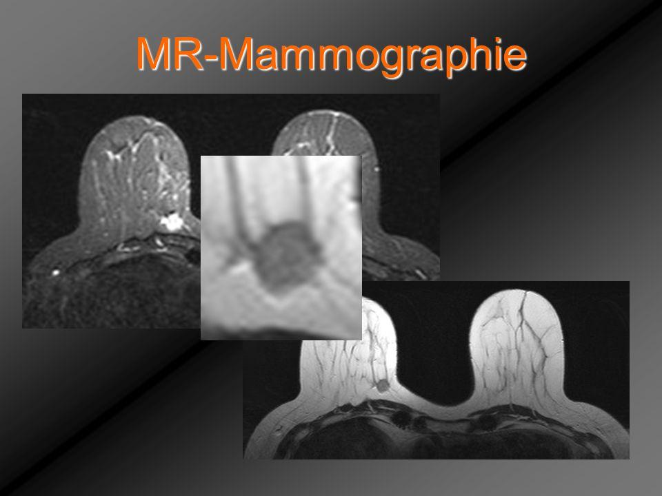 MR-Mammographie Mutewsky Irmgard, -mammae brustwandnahe, Mammo inkomplett dargestellt