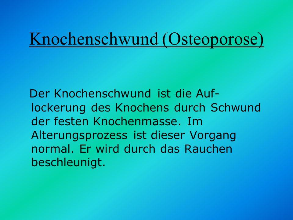 Knochenschwund (Osteoporose)