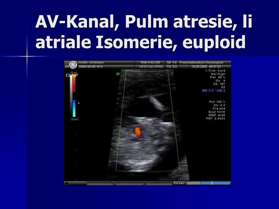 AV-Kanal, Pulm atresie, li atriale Isomerie, euploid