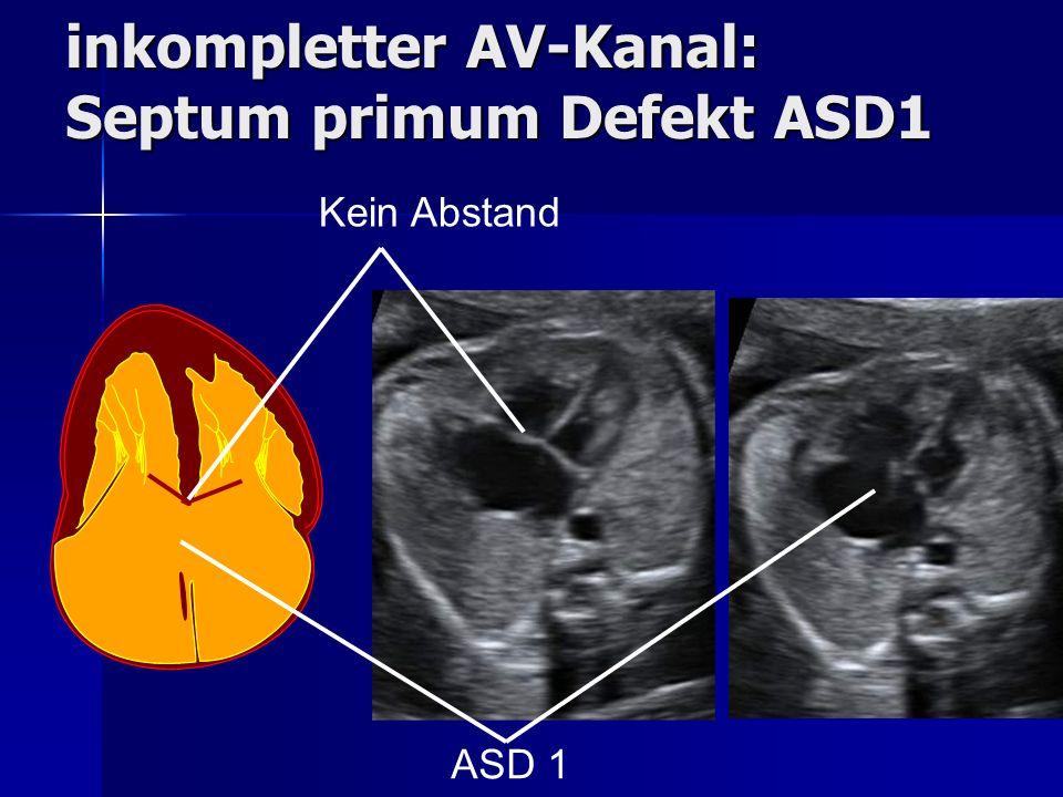 inkompletter AV-Kanal: Septum primum Defekt ASD1