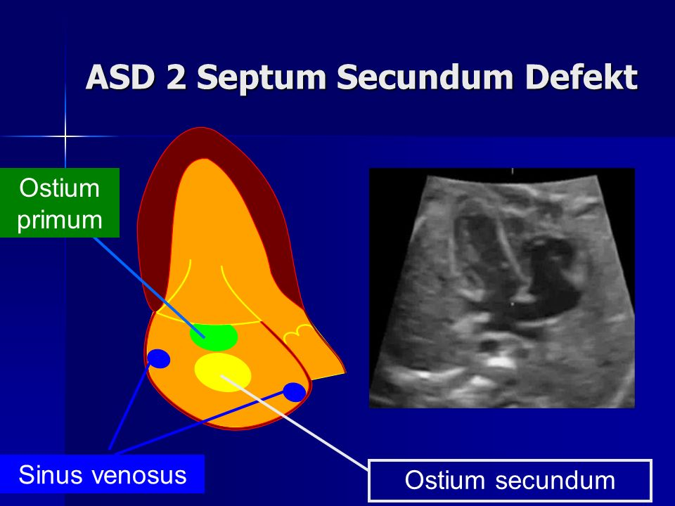 ASD 2 Septum Secundum Defekt