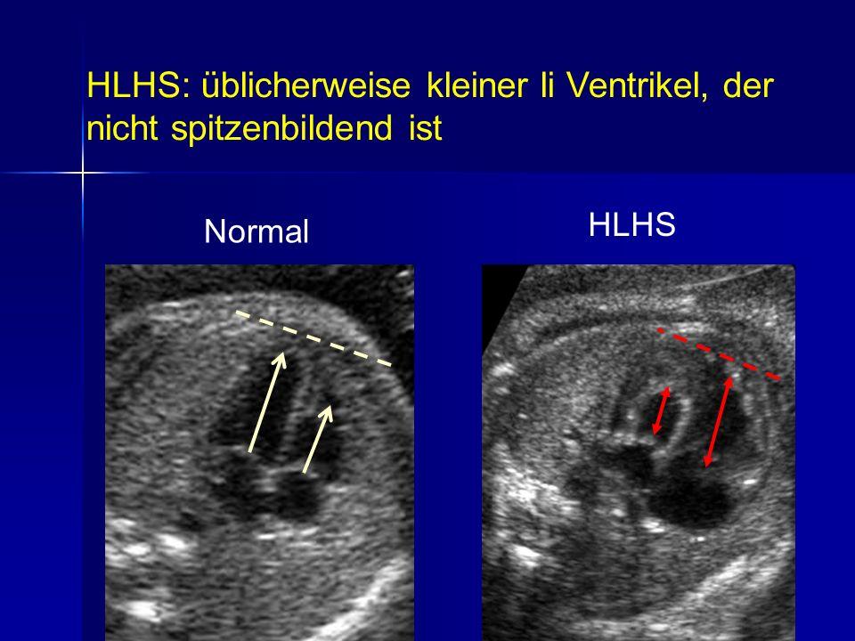 HLHS: üblicherweise kleiner li Ventrikel, der nicht spitzenbildend ist