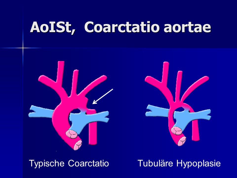 AoISt, Coarctatio aortae