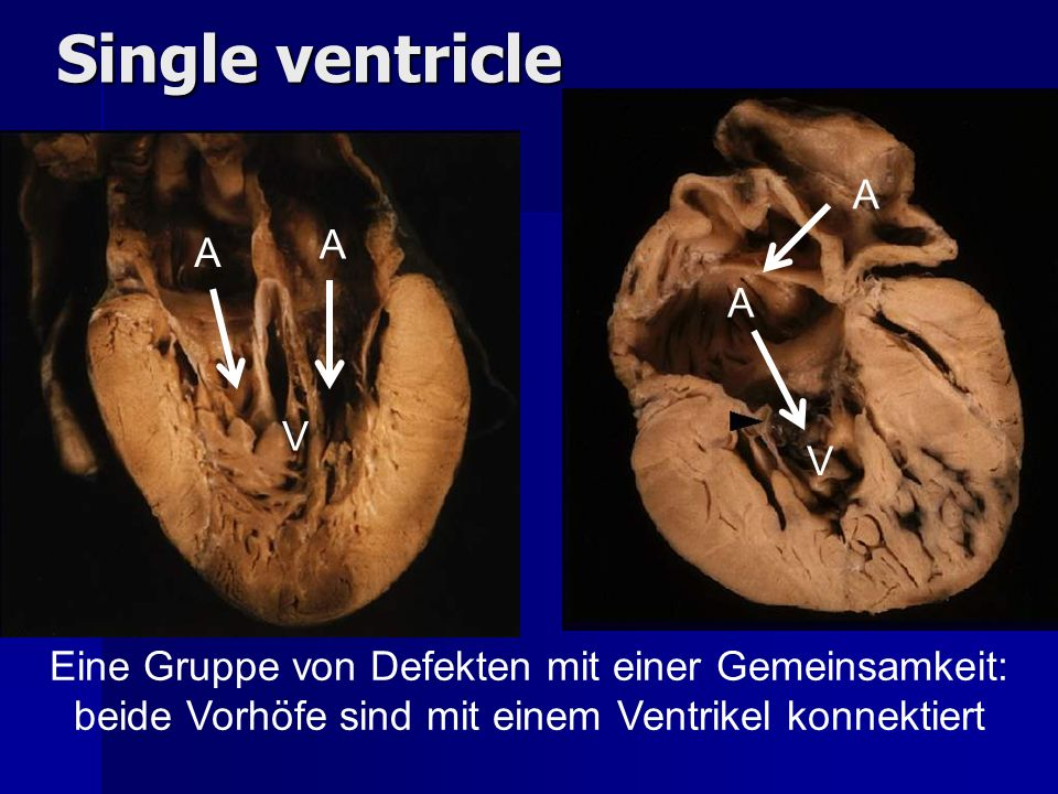 Single ventricle A A A A V V