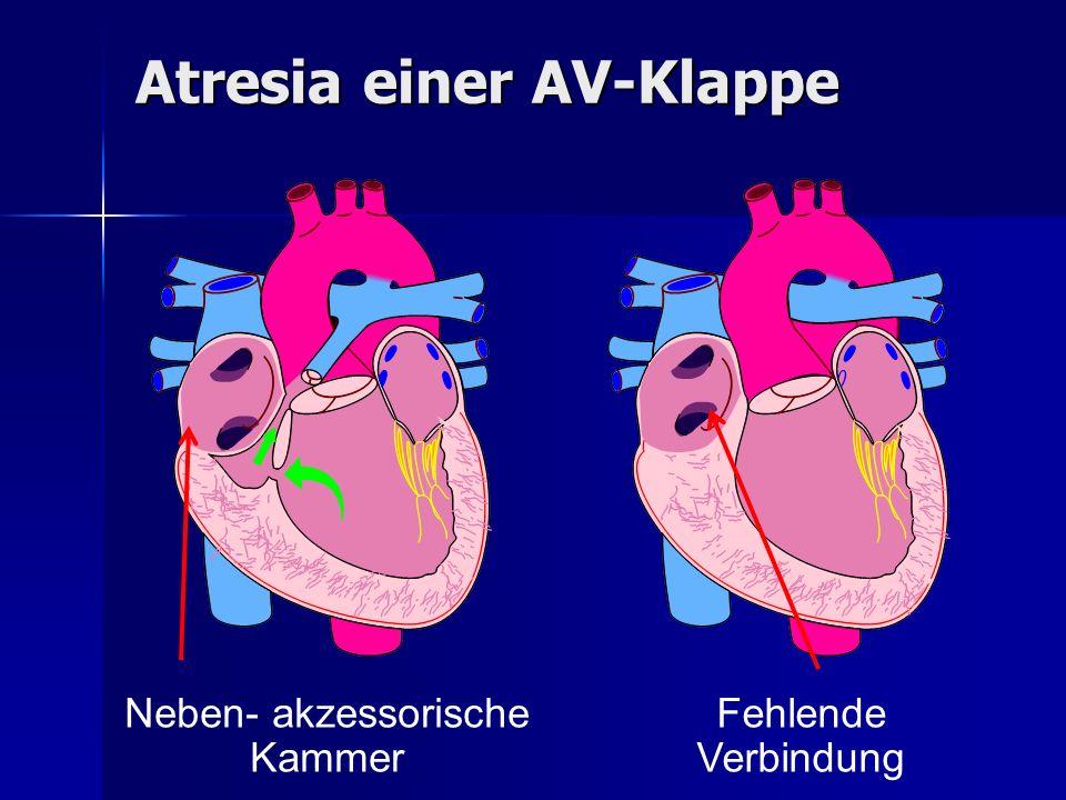 Atresia einer AV-Klappe