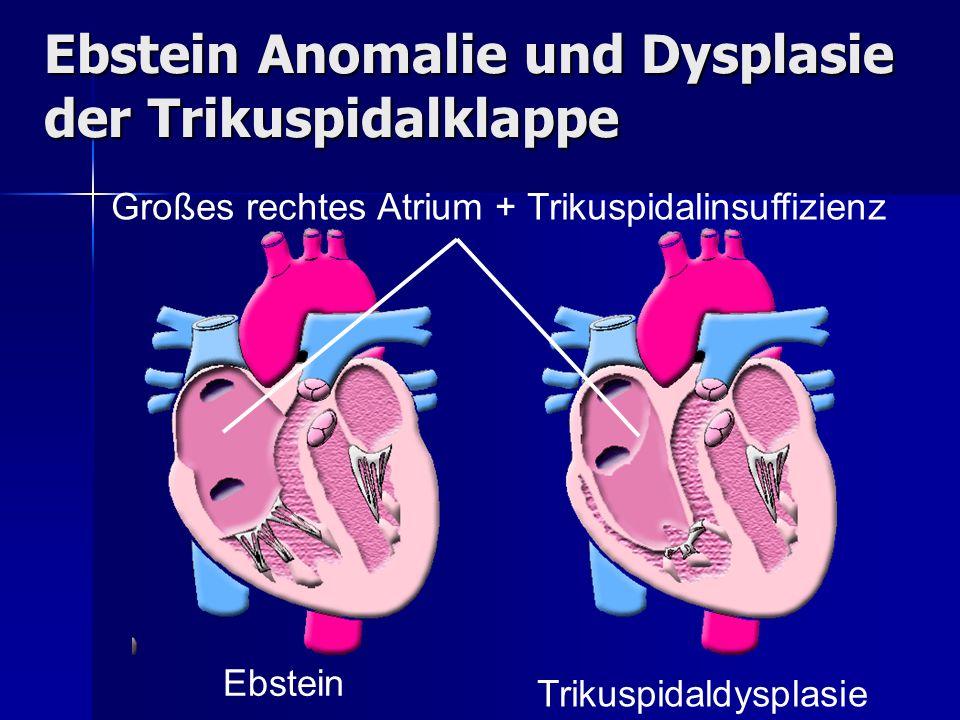 Ebstein Anomalie und Dysplasie der Trikuspidalklappe