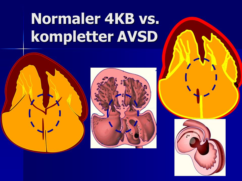 Normaler 4KB vs. kompletter AVSD
