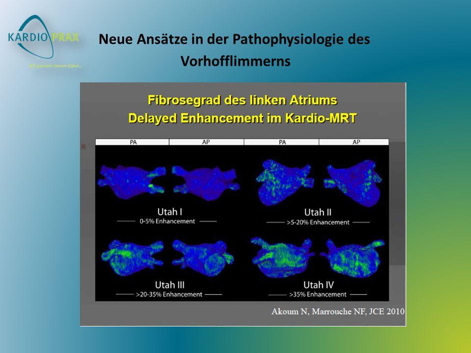 Neue Ansätze in der Pathophysiologie des Vorhofflimmerns