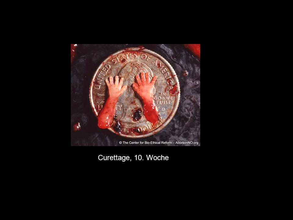 """Curettage, 10. Woche In der Informations-Broschüre von Pro-Familia zum Thema """"Schwangerschaftsabbruch liest sich das so:"""