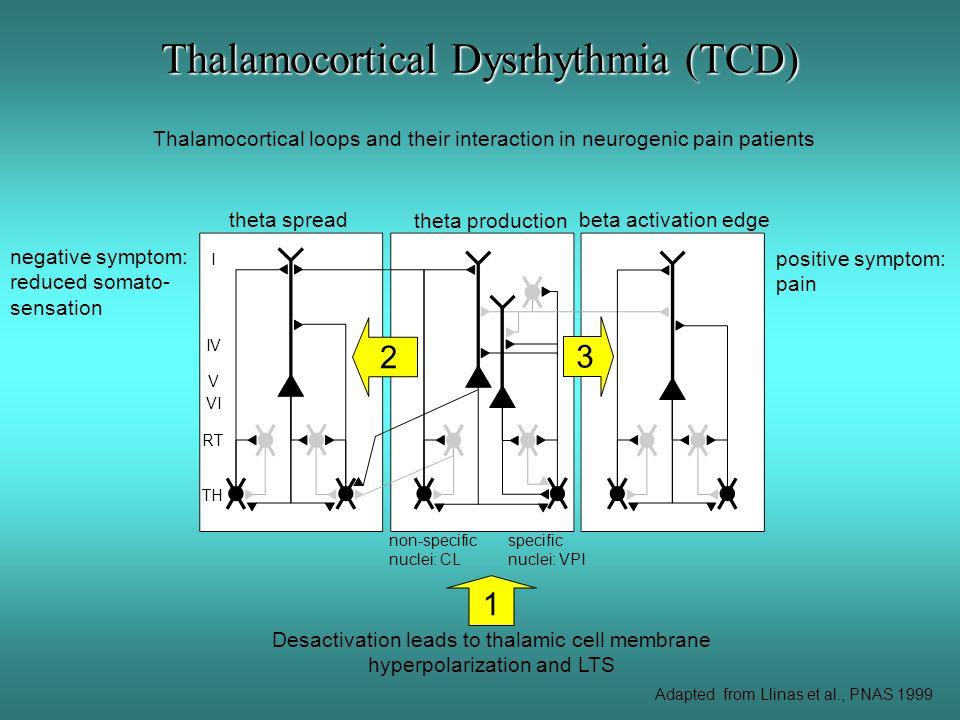 Thalamocortical Dysrhythmia (TCD)
