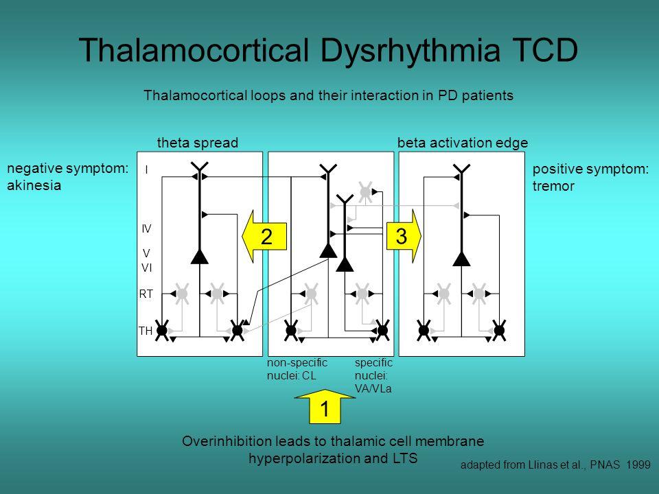 Thalamocortical Dysrhythmia TCD