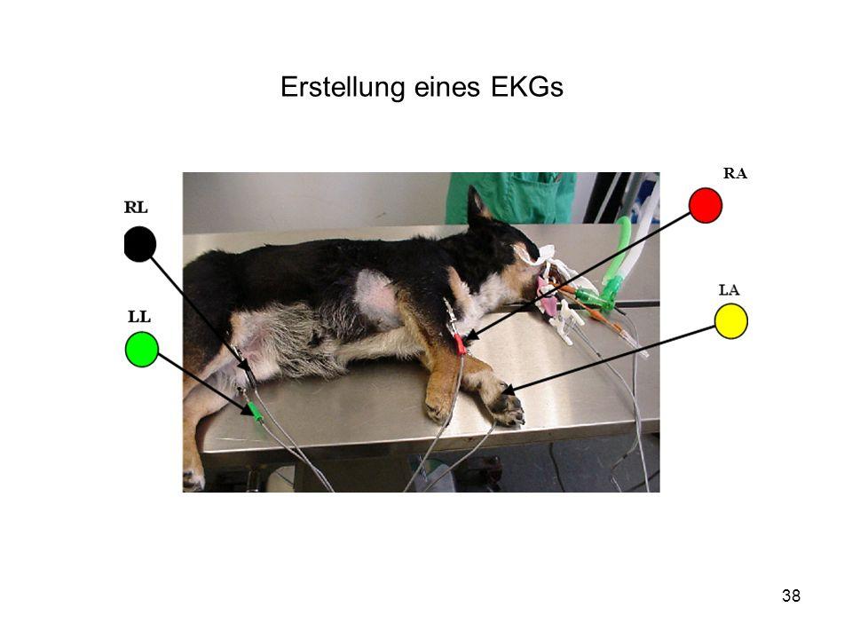 Erstellung eines EKGs RA