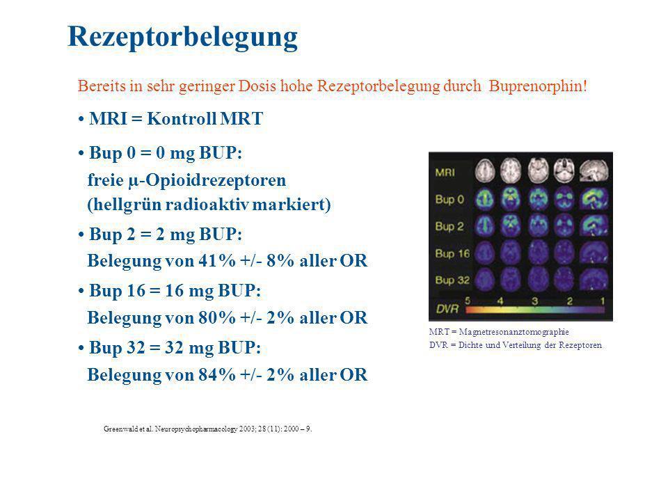 Rezeptorbelegung • MRI = Kontroll MRT • Bup 0 = 0 mg BUP:
