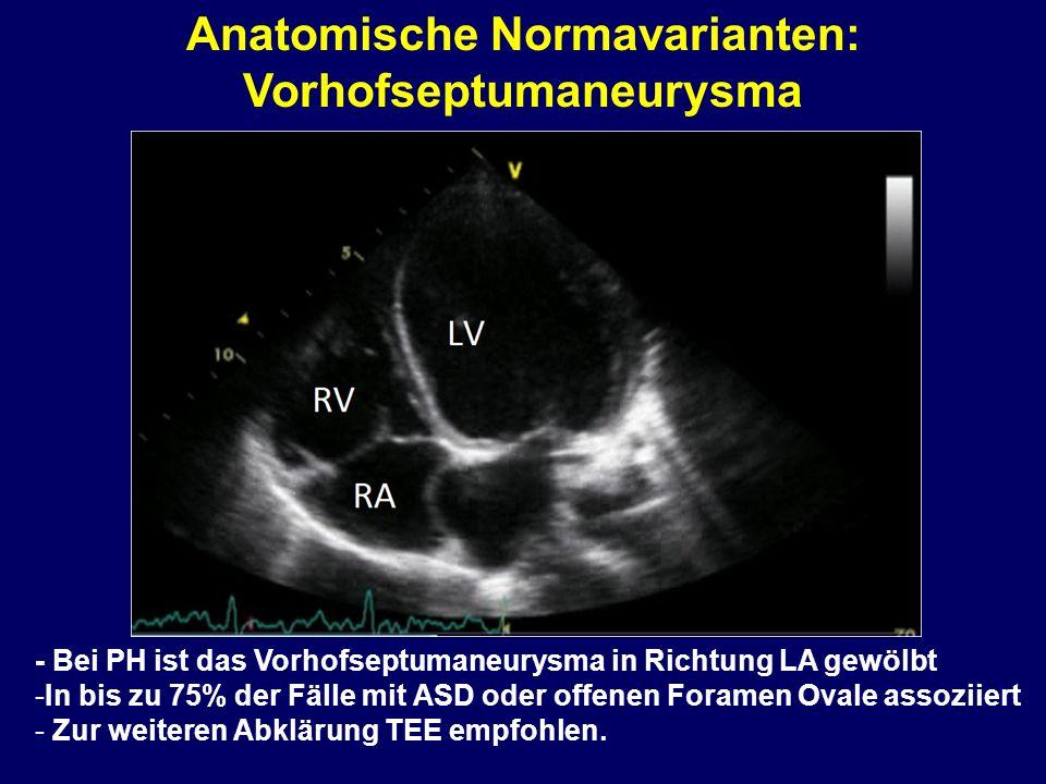 Anatomische Normavarianten: Vorhofseptumaneurysma