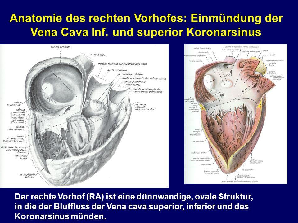 Anatomie des rechten Vorhofes: Einmündung der Vena Cava Inf
