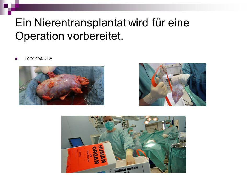 Ein Nierentransplantat wird für eine Operation vorbereitet.