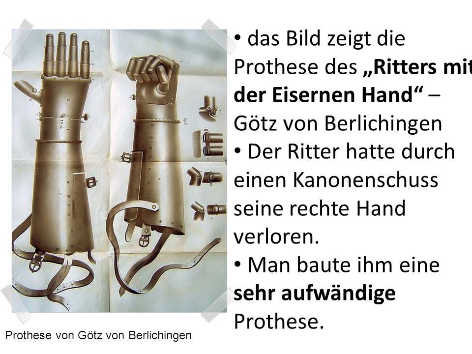 Der Ritter hatte durch einen Kanonenschuss seine rechte Hand verloren.
