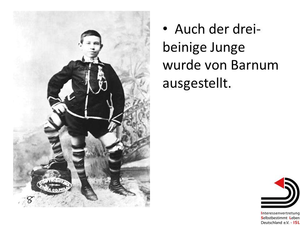 Auch der drei-beinige Junge wurde von Barnum ausgestellt.