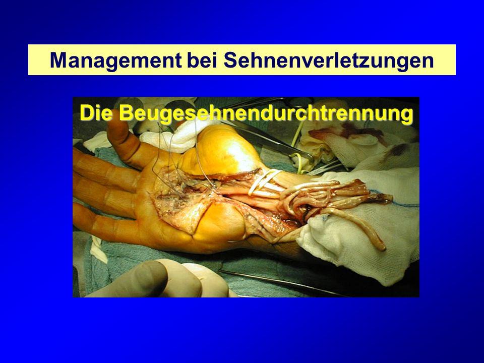 Management bei Sehnenverletzungen Die Beugesehnendurchtrennung